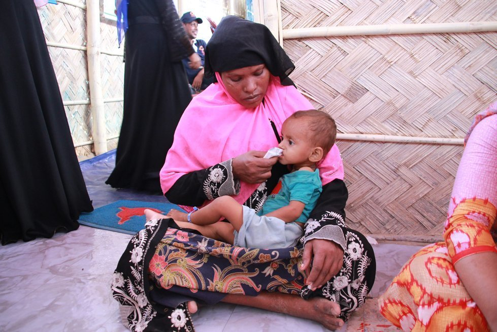 Baby Unisha is a refugee from Myanmar who is malnourished. CARE is working to support malnourished children in refugee camps in Bangladesh