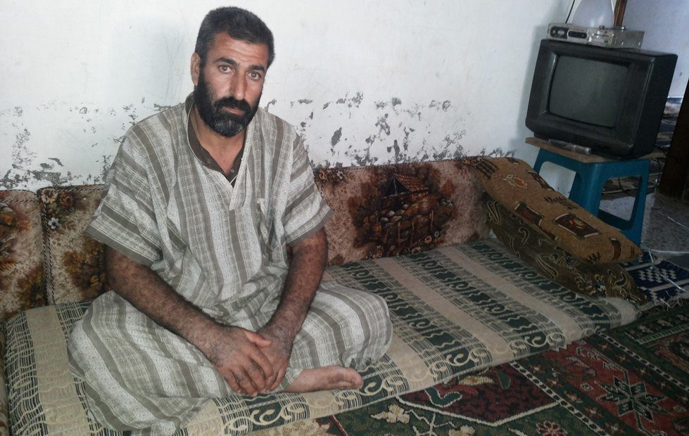Hamdou Hussein Nabhan. When battles reached his town in Syria, Hamdou's work place was hit by an airstrike, leaving him severely injured.