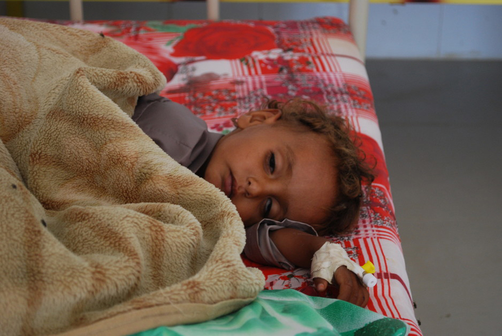 Adham is 4 years old and being treated for cholera at a hospital in Amran Governorate, Yemen.